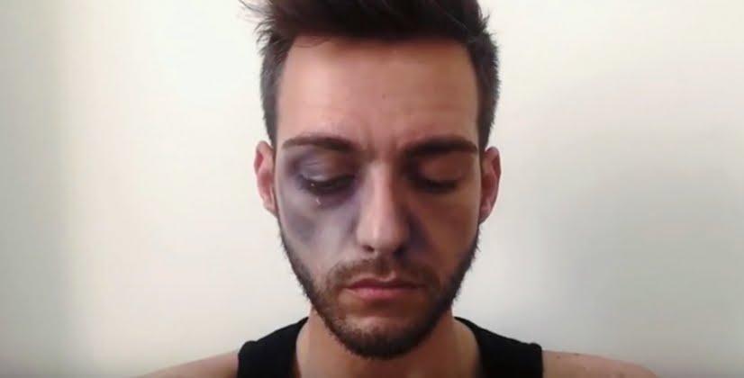 Photo d'illustration d'un homme battu